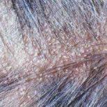 Saç Derisi Problemim Çözüm Head & Shoulders